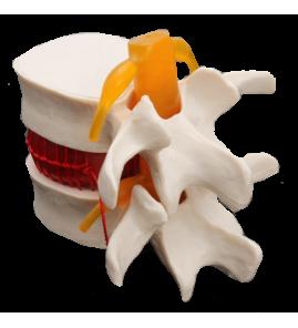 Simulateur de hernie discale
